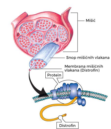 Mišićna distrofija - Dišenova mišićna distrofija